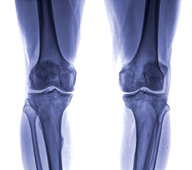 Knee x-ray , isolated on white background