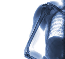 X-ray of shoulder and arm