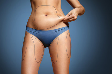 woman pinched her fat on body. Body with marked zones for liposu
