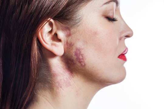 beautiful woman with port-wine stain (birthmark) on her face.