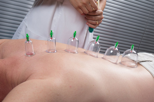 Multiple vacuum cup of medical cupping therapy on human man body