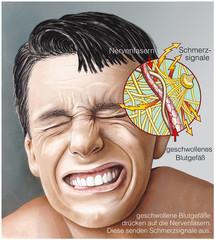 Schmerzentstehung bei Kopfschmerzen