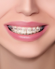Closeup Ceramic and Metal Braces on Teeth. Beautiful Female Smile with Brackets. Orthodontic Treatment. Front View..