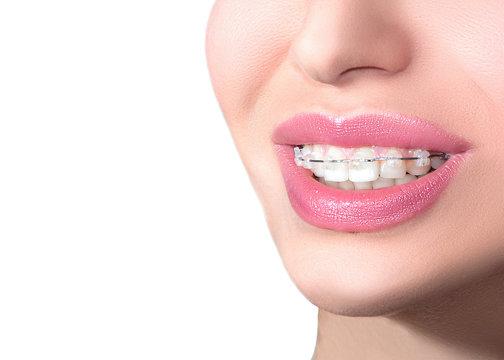 Closeup Ceramic Braces on Teeth. Beautiful Female Smile with Braces. Orthodontic Treatment. Dental care Concept. B.