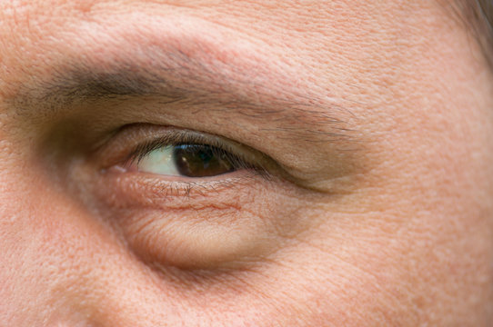 Eyesore, inflammation or bag swelling under eye