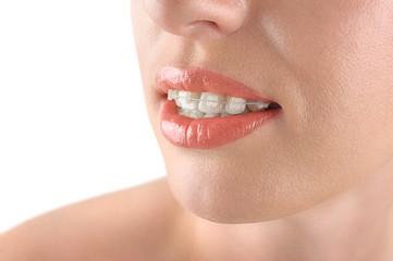 Teeth alignment. Braces. Beautiful woman smiling.