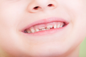 Closeup of child mouth with new teeth growing