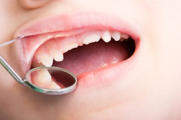 Child teeth examined by dentist