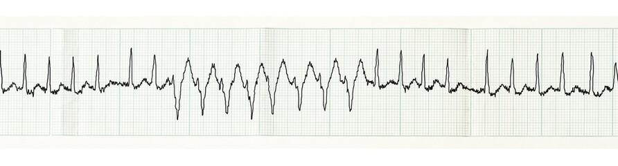 ECG with paroxysm of atrial fibrillation