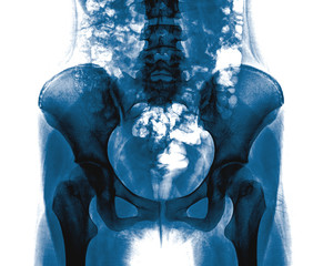 X-ray of the pelvis and spinal column