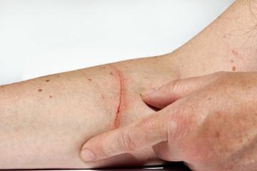Eine blutende Verletzung am Arm einer Frau