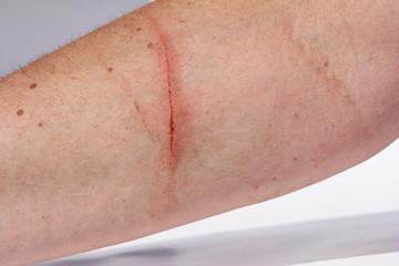 Ein blutender Kratzer am Arm einer Frau