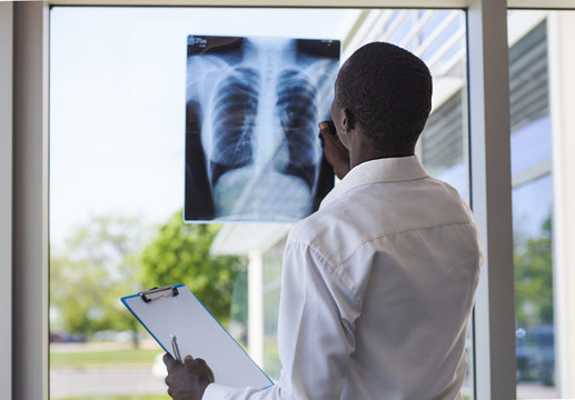 patient looking a lung radiographya lung radiography