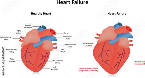 U0026quot Heart Failure Labeled Diagram U0026quot  Stock Image And Royalty