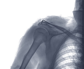 rengs snapshot of the shoulder joint with a bolt , xray