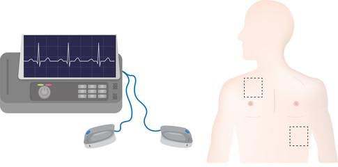 Defibrillator Positions