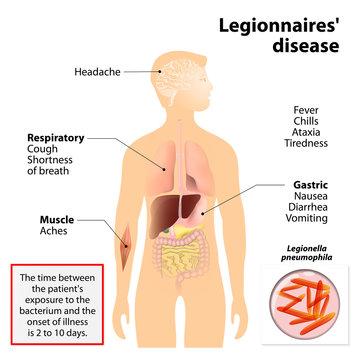 Legionnaires disease or legionellosis