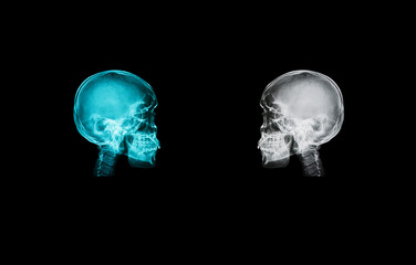 skull x-ray image isolate on black backgroud with clipping path