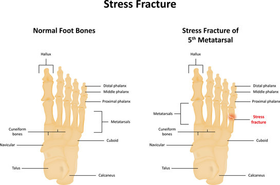 Stress Fracture of Toe