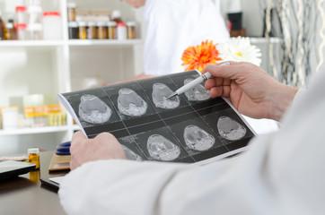 Doctor analyzing a MRI scan