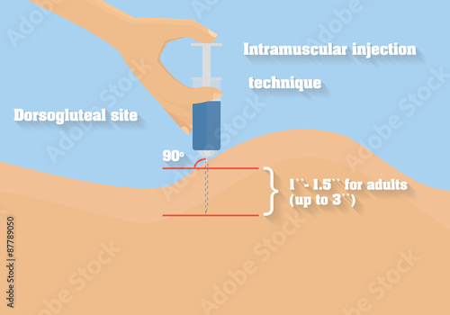 intramuscular injection technique vector illustration angle and