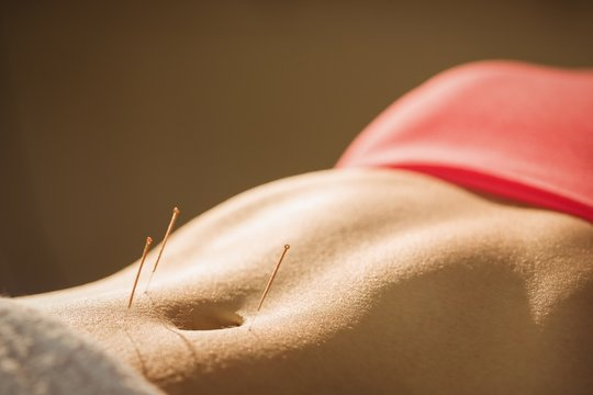 Young woman getting acupuncture treatment