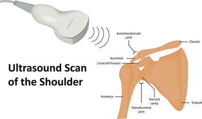 Ultrasound Scan of Shoulder