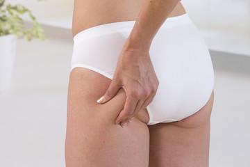 Cellulite Femme