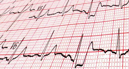 Cardiogram by CU