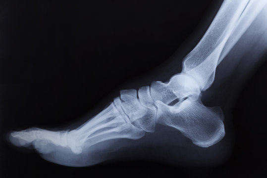 Broken right foot ankle Xray, side view