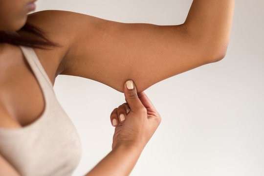 Young Woman Holding Excess Fat on her Arm