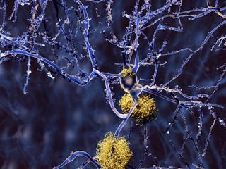Alzheimer: Neuron mit Amyloid-Plaques