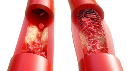 Arteriosklerose - Behandlung mit Stent