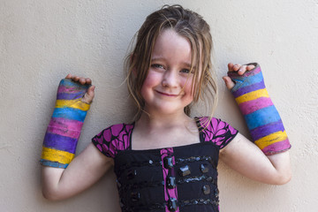 Child Broken Arms wrists in plaster color casts