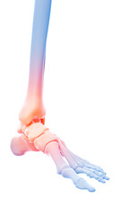 medical 3d illustration of a painful ankle