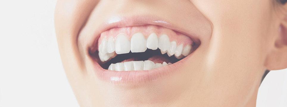 Sorriso denti donna felice
