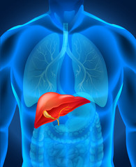 Liver caner in human body