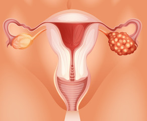 Ovarian cancer in woman