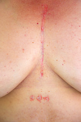 Woman's chest with postoperative scar of cardiac surgery