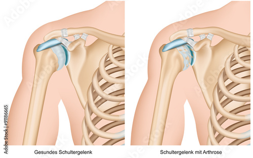 Schulter-Arthrose