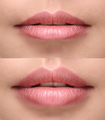 Sexy plump lips after filler injection