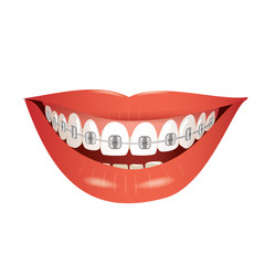 smiling mouth with braces isolated  vector illustration