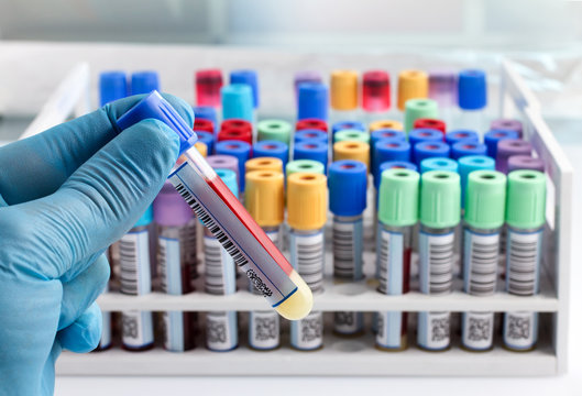laboratory technician holding a blood tube test labeled with bar / hand of a lab technician holding blood tube test and background a rack of color tubes