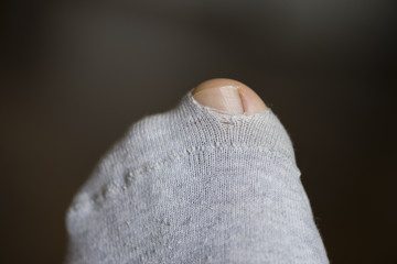 Big Toe coming through hole in torn sock