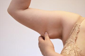 肥満女性の二の腕
