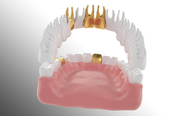 3D jaw with gold tooth