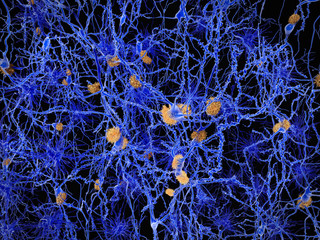 Alzheimer, neuron network with amyloid plaques