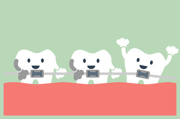 teeth orthodontics