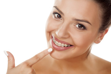 smiling young woman pointing a finger on her braces