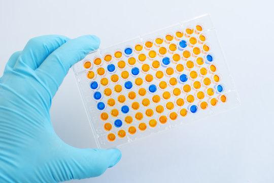 Enzyme-linked immunosorbent assay (ELISA), Immunology testing method in laboratory